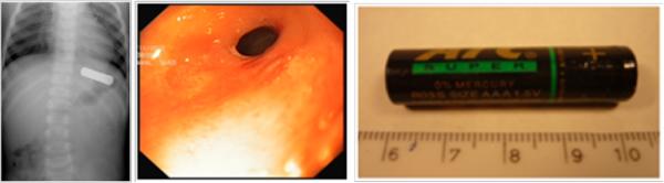 Od lewej: zdjęcie 1. bateria paluszek AAA wżołądku, zdjęcie 2. okolica przedodźwiernikowa, zdjęcie 3. bateria paluszek AAA.