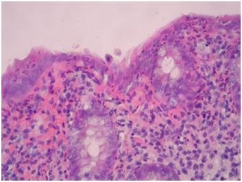 Zdjęcie 5. Błona śluzowa jelita grubego – skupiska eozynofilów naciekające nabłonek pokrywny inabłonek krypt gruczołowych, barwienie H.E., pow. 400x.