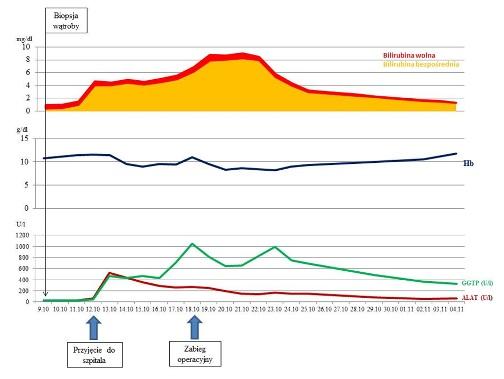 Rycina 1 Zmiany stężenia bilirubiny bezpośredniej ipośredniej (mg dl), hemoglobiny (g dl) orazaktywności ALAT (Ul) iGGTP (Ul) wkolejnych dniach pobiopsji wątroby