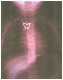 Zdjęcie 1. Badanie RTG klatki piersiowej uwidaczniające metaliczne ciało obce nawysokości Th2–Th3.