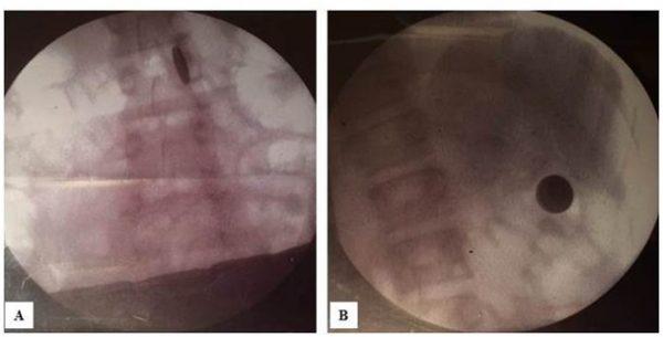 Zdjęcie 2. Badanie RTG nasali endoskopowej tuż przedbadaniem endoskopowym