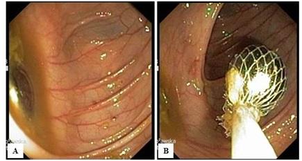 Zdjęcie 3. Badanie endoskopowe