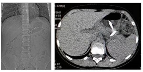 Zdjęcie 4 Tomografia komputerowa brzucha 3 miesiące pozałożeniu drenażu endoskopowego