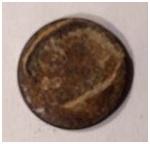 Zdjęcie 9. Ciało obce usunięte ręcznie zodbytnicy – skorodowany krążek metalowy – najprawdopodobniej moneta onominale 5 gr.